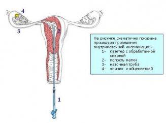 Обогащенная сперма