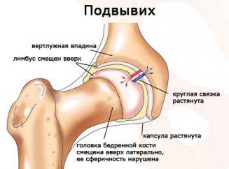 Дисплазия тазобедренных суставов последствия фото таблетки для лечения деформирующего артроза коленного сустава