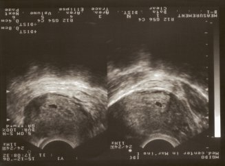 Узи на сроке 2 недели беременности